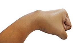 Le cisti sinoviali dorsali del polso